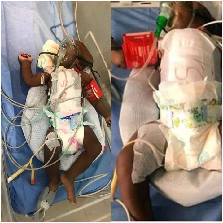 Des jumelles siamoises opérées avec succès, un première au Sénégal